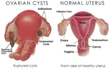 ovarian-cysts-and-ruptured-cysts